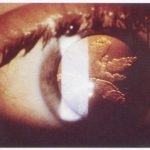 cataracte contusive